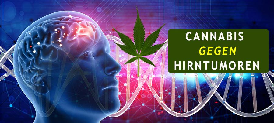 Cannabis und die Behandlung von Hirntumoren. Was die Ärzte verschweigen?