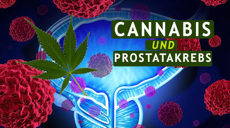 Medizinisches Cannabis und die Behandlung von Prostatakrebs