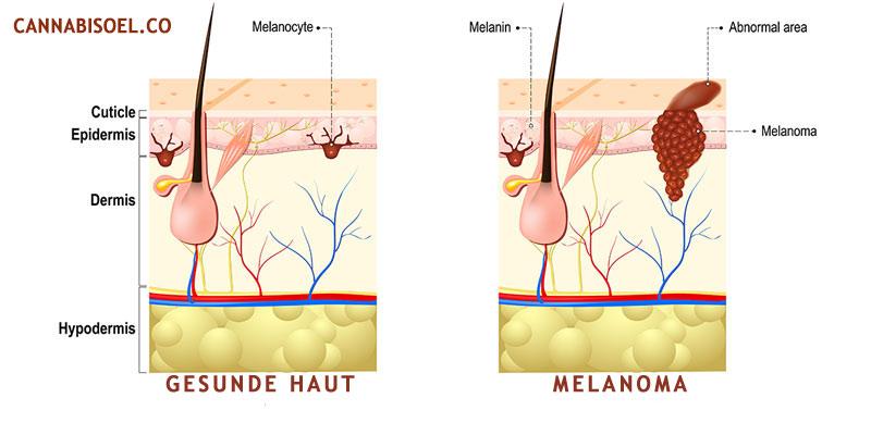 melanoma cannabis