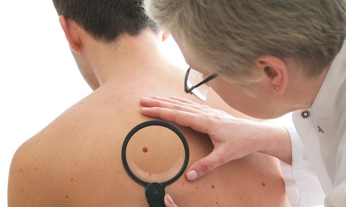 melanoma hautkrebs