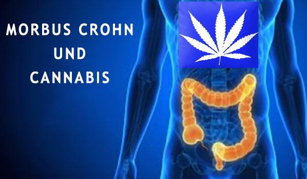 Medizinisches Marihuana und Morbus Crohn