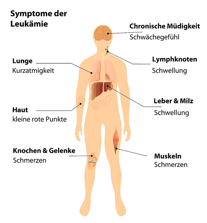 symptome Leukämie